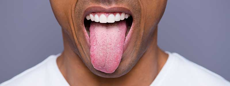 Have you heard of sour tongue?